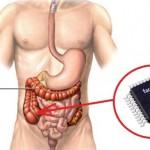 Chip intracorporei installati clandestinamente tramite colonscopia