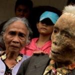 Focolaio di Morgellons in Indonesia, popolazione in quarantena